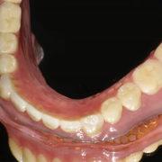 高吸着性の下顎の入れ歯