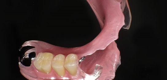 大分の入れ歯
