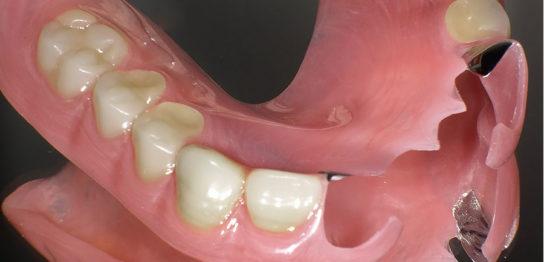 大分県の部分入れ歯症例