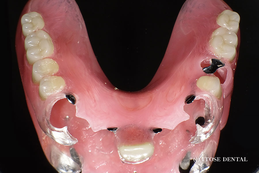 大分県の入れ歯治療