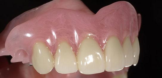 大分県の入れ歯の症例
