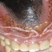 上顎の高級着義歯